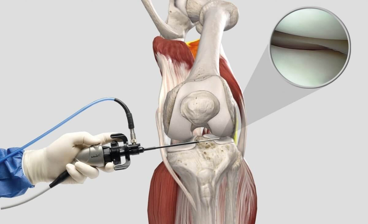 Артроскопия колена
